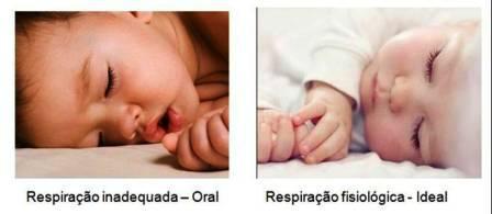 http://img.comunidades.net/cli/clinicaciso/Figura13.jpg
