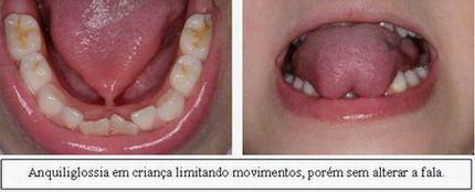 http://img.comunidades.net/cli/clinicaciso/LINGUAPRESAFOTOS.jpg