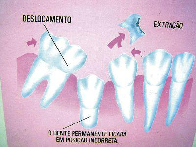 http://img.comunidades.net/cli/clinicaciso/PERDA_PRECOCE_DEC_DUO.jpg