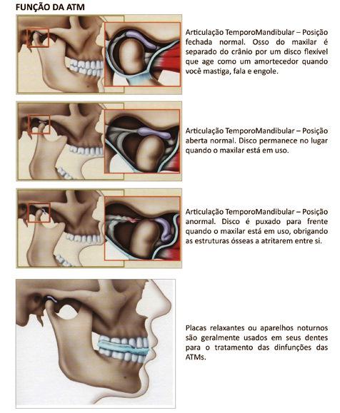 http://img.comunidades.net/cli/clinicaciso/atm_placa_bruxismo.jpg