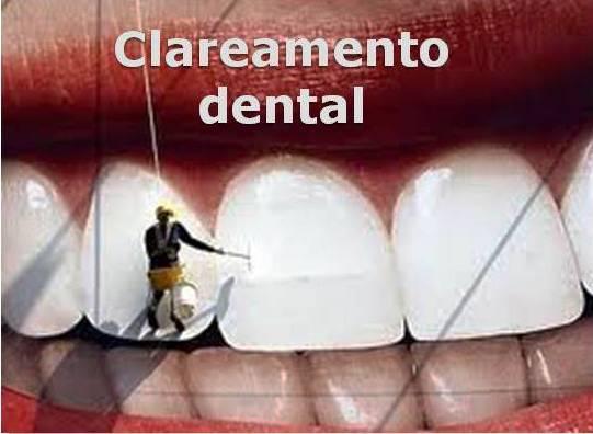 http://img.comunidades.net/cli/clinicaciso/banerclareamento.jpg