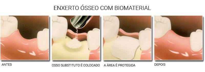 http://img.comunidades.net/cli/clinicaciso/dentista_niteroi_rj_blog_post_qual_a_necessidade_de_um_enxerto_osseo_para_colocacao_de_implante_dentario_2.jpg