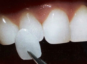 http://img.comunidades.net/cli/clinicaciso/facetaDental_Veneers_in_India.jpg