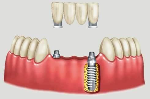 http://img.comunidades.net/cli/clinicaciso/fig_2._ppf_implante_esquema_implante1.jpg