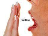 http://img.comunidades.net/cli/clinicaciso/halitose_peq.jpg
