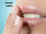 http://img.comunidades.net/cli/clinicaciso/herpes_peq.jpg