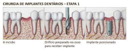 http://img.comunidades.net/cli/clinicaciso/implante3.jpg