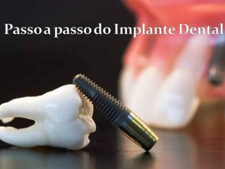https://img.comunidades.net/cli/clinicaciso/implante_passoapasso.JPG