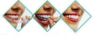 http://img.comunidades.net/cli/clinicaciso/invisible_orthodontics4.jpg
