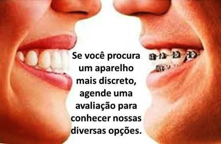http://img.comunidades.net/cli/clinicaciso/ortoinvisivel.JPG