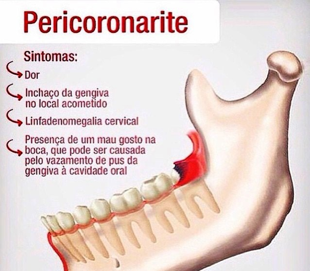 http://img.comunidades.net/cli/clinicaciso/pericoronarite_21.jpg
