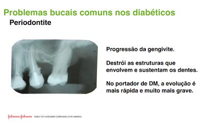 http://img.comunidades.net/cli/clinicaciso/periodontite.png