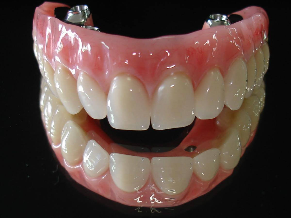 http://img.comunidades.net/cli/clinicaciso/protese_dentaria_Protocolo__1.jpg