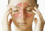 http://img.comunidades.net/cli/clinicaciso/sinusitis1.jpg