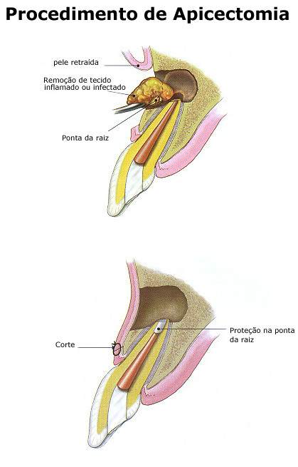 http://img.comunidades.net/cli/clinicaciso/untitled_4_3_.jpg