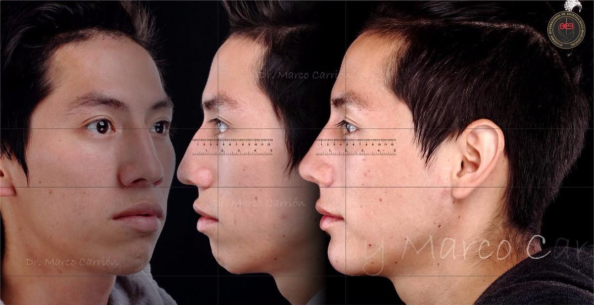 Harmonização Orofacial na Odontologia:  Rinomodelação para Dentistas