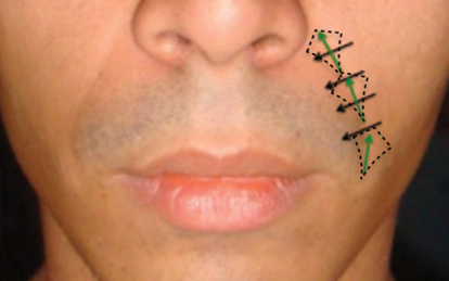 Harmonização Orofacial na Odontologia:  sulcos para Dentistas