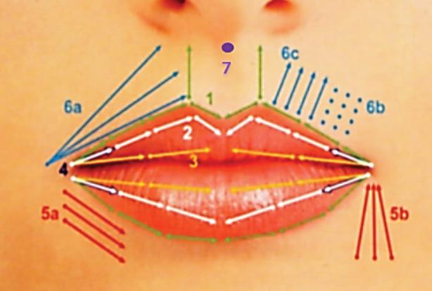 Harmonização Orofacial na Odontologia:  Preenchimento de lábios para Dentistas
