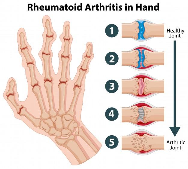 Arteritis takayasu