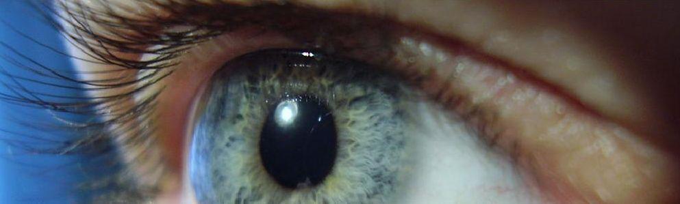 Irodologia Olho