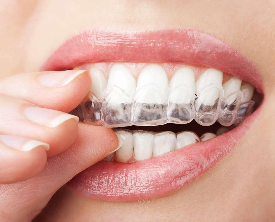 vantagens dos Alinhadores Invisíveis Ortodônticos na boca