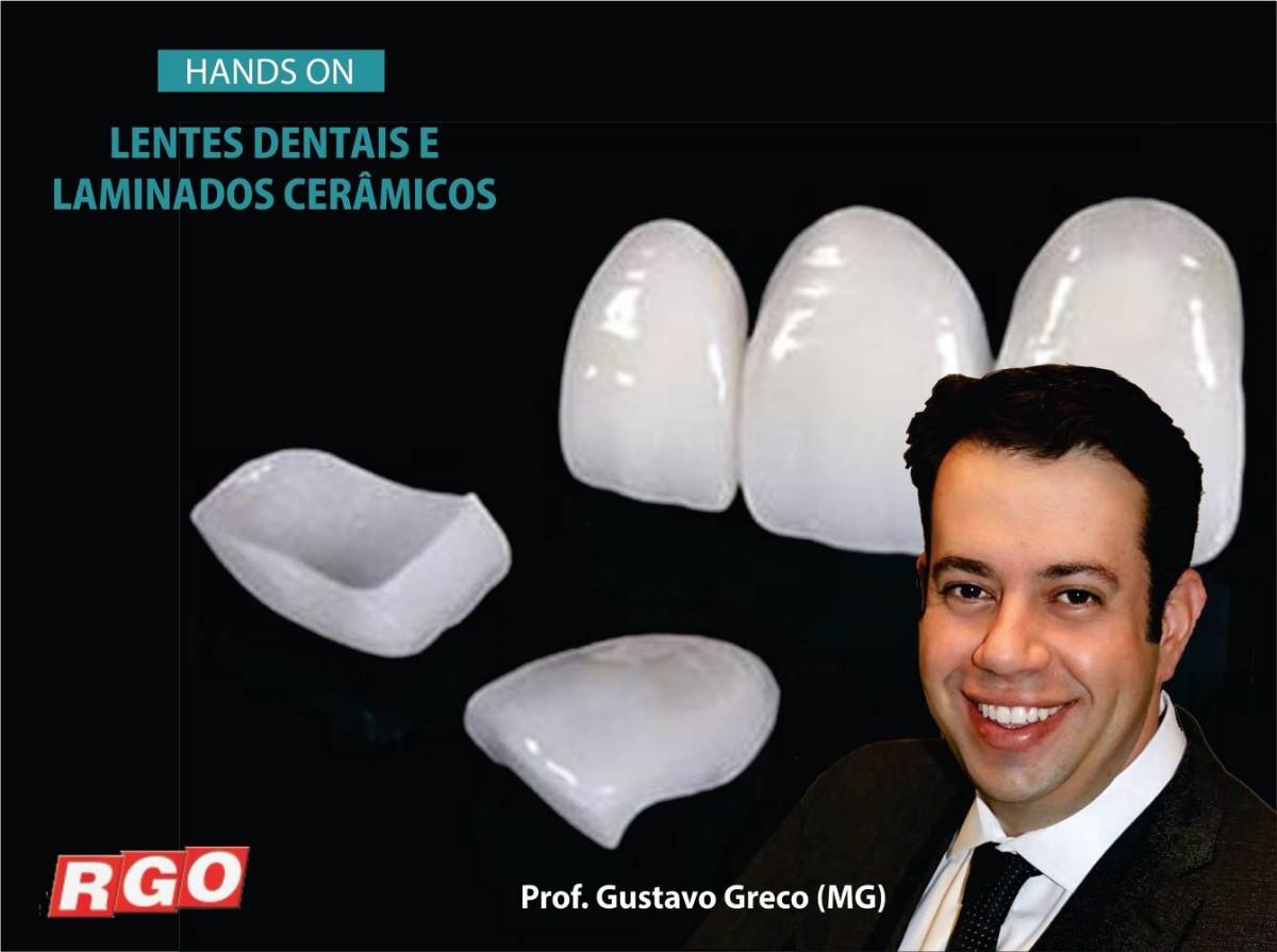 Curso de Odontologia em Porto Alegre Lentes Dentais