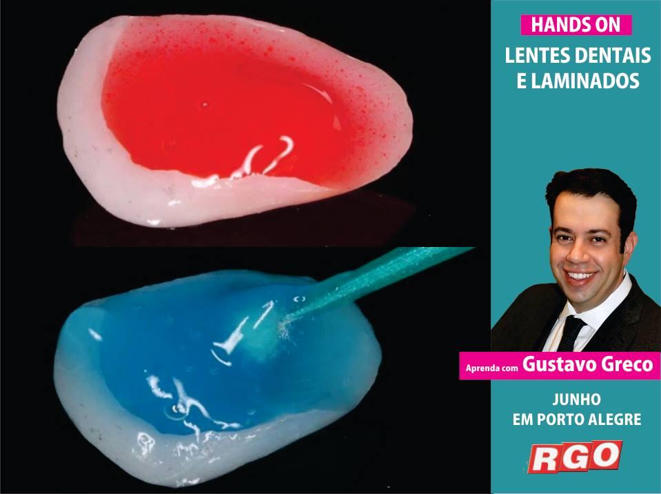 Curso de Odontologia para dentistas em Lentes Dentais e Laminados