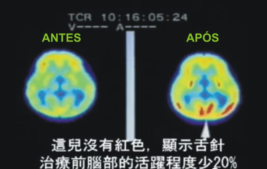 Pet Scan d Cérebro antes e após a técnica Shézhen