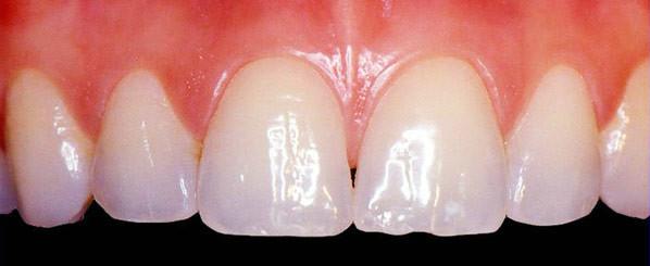 Creme dental Glister