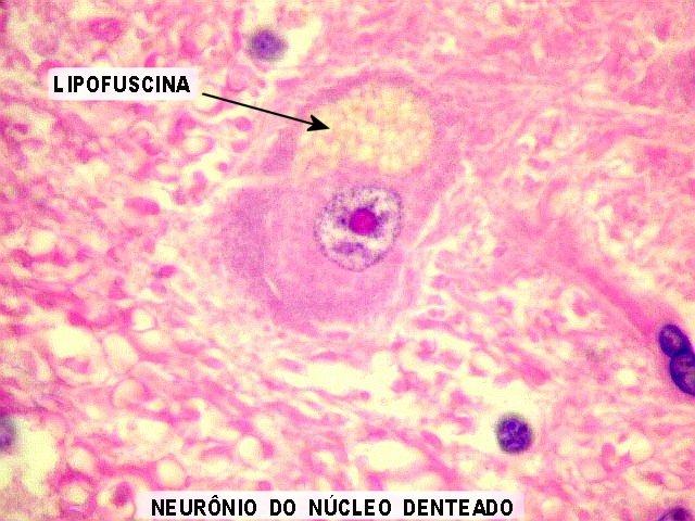 núcleo denteado
